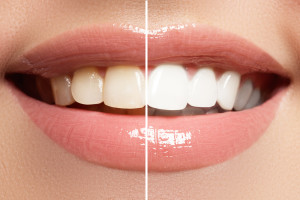 Popular cosmetic dentistry procedure - teeth whitening
