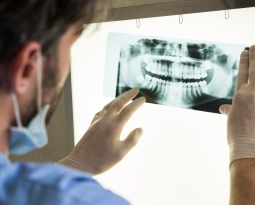 Importance of Dental X-Rays