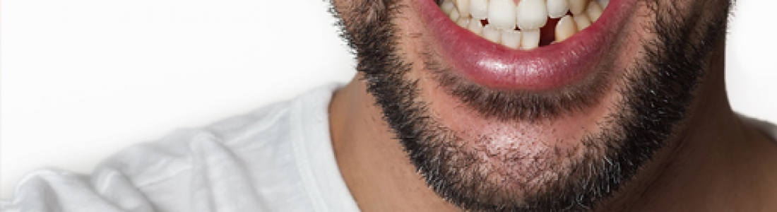 Everyday Habits That Can Wreck Your Teeth