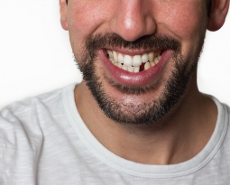 Why It Is Important to Replace Missing Teeth